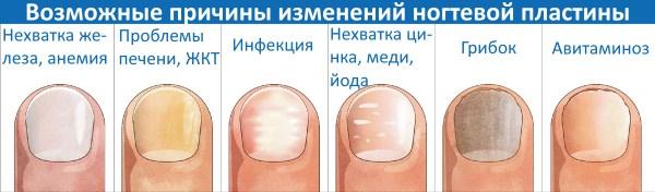 Почему желтеют ногти на руках и ногах