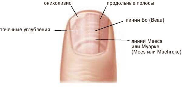 Борозды на ногтях: причины, как проявляются продольные и поперечные борозды на ногтях