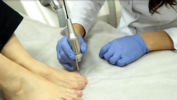 Как растет ноготь после травмы. Как отрастает ноготь после грибка: способы восстановления